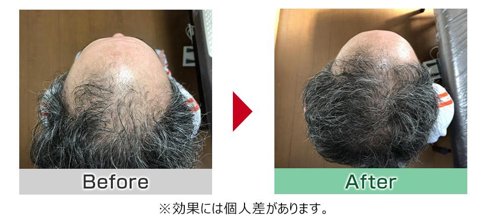 発毛ビフォーアフター